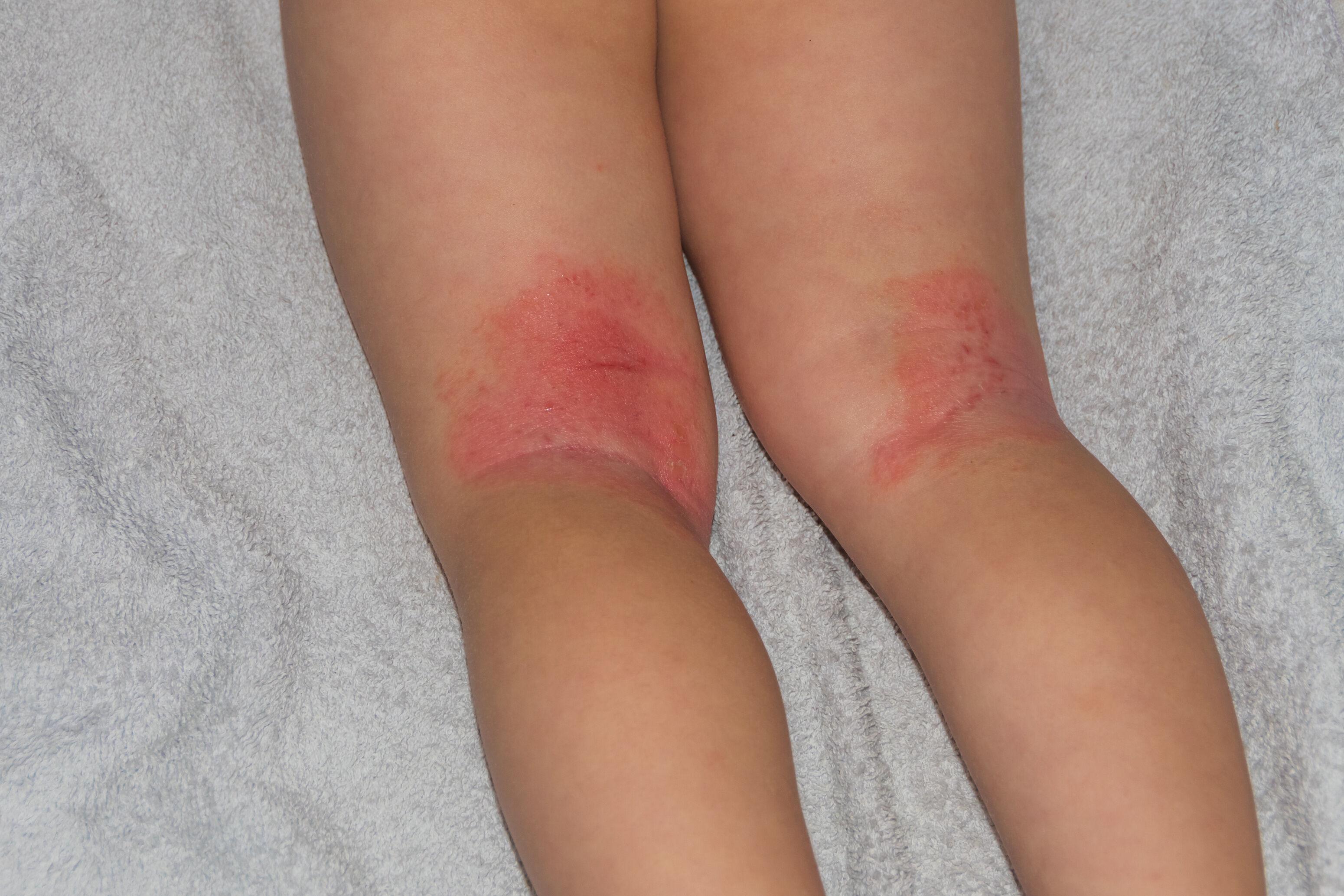 Children's dermatitis