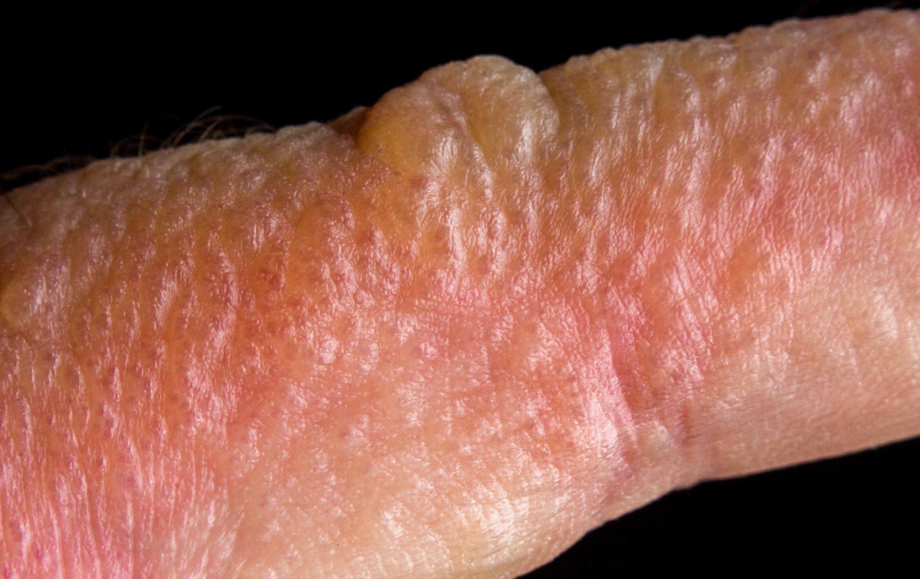 Poison ivy rash on the finger