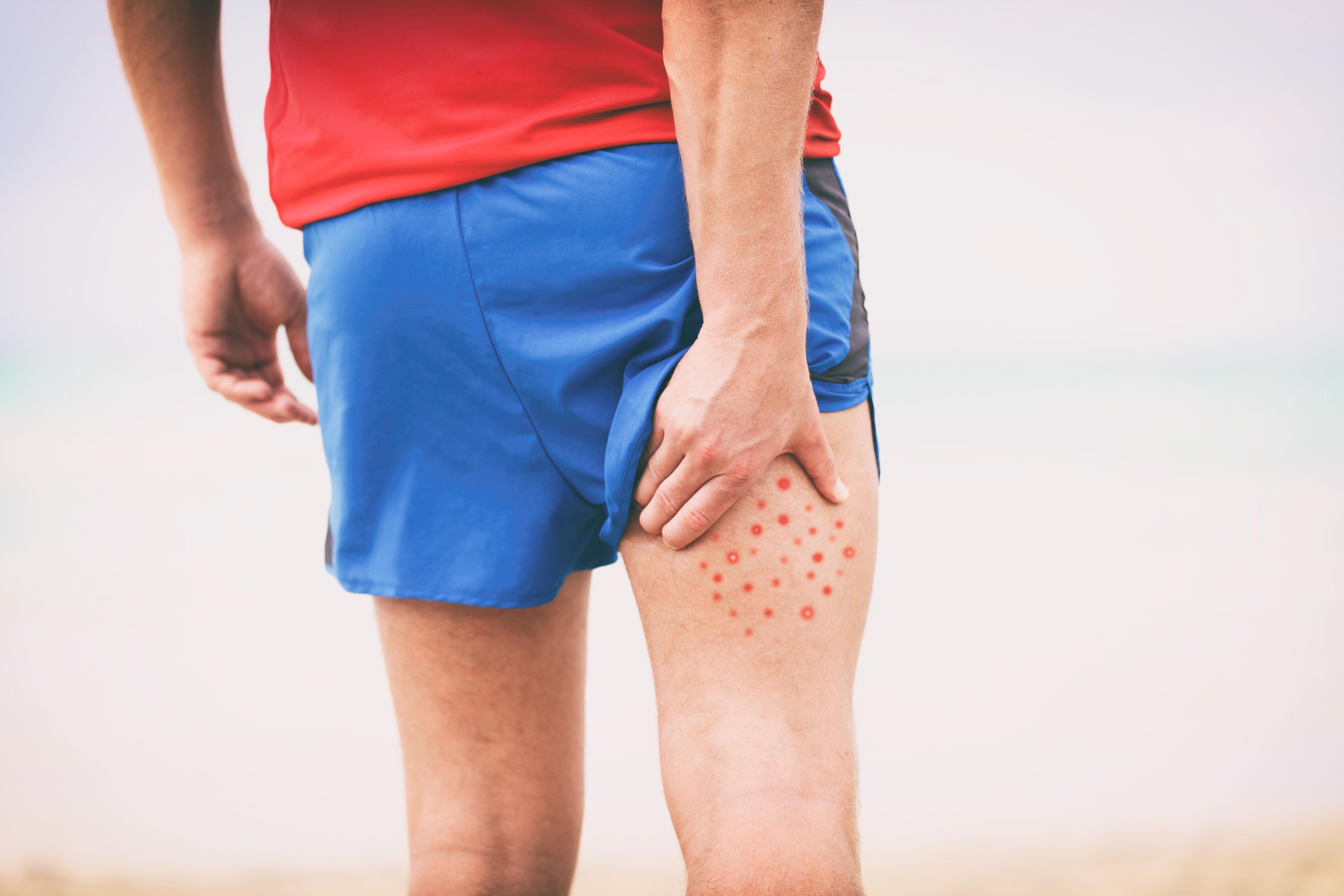 Poison ivy rash on the thigh