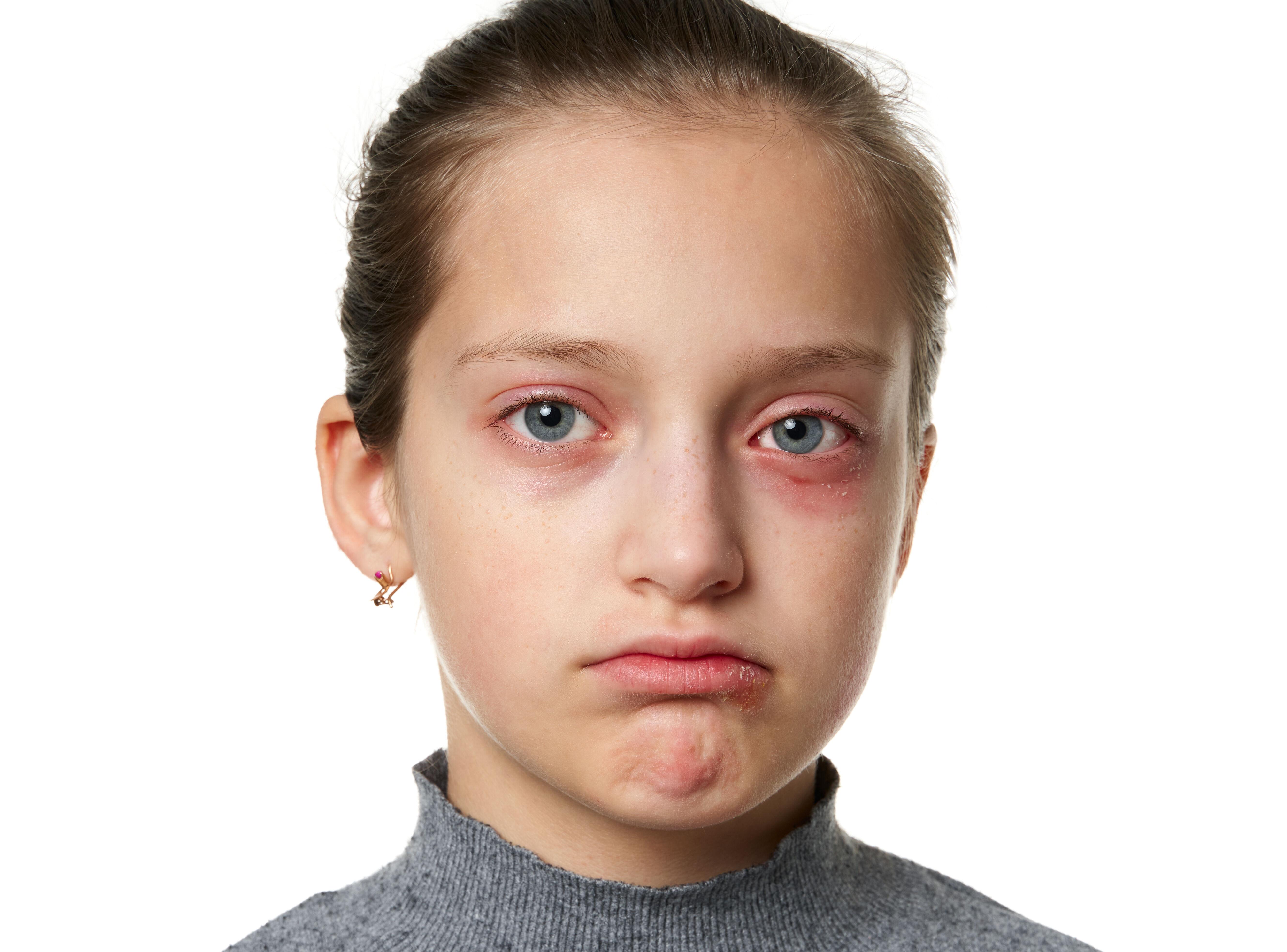 Upset girl with sore eyes