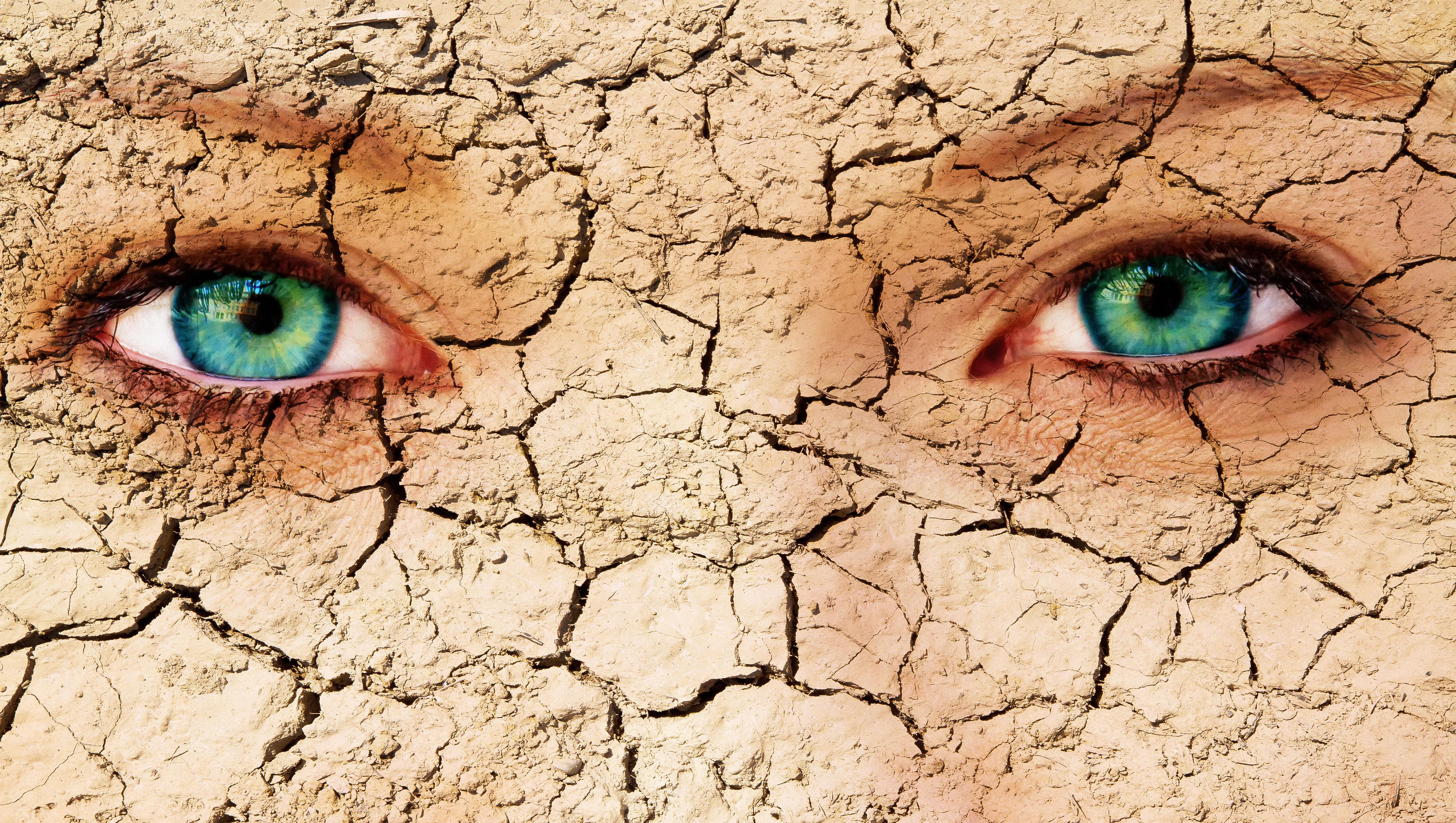 coronavirus dry eyes