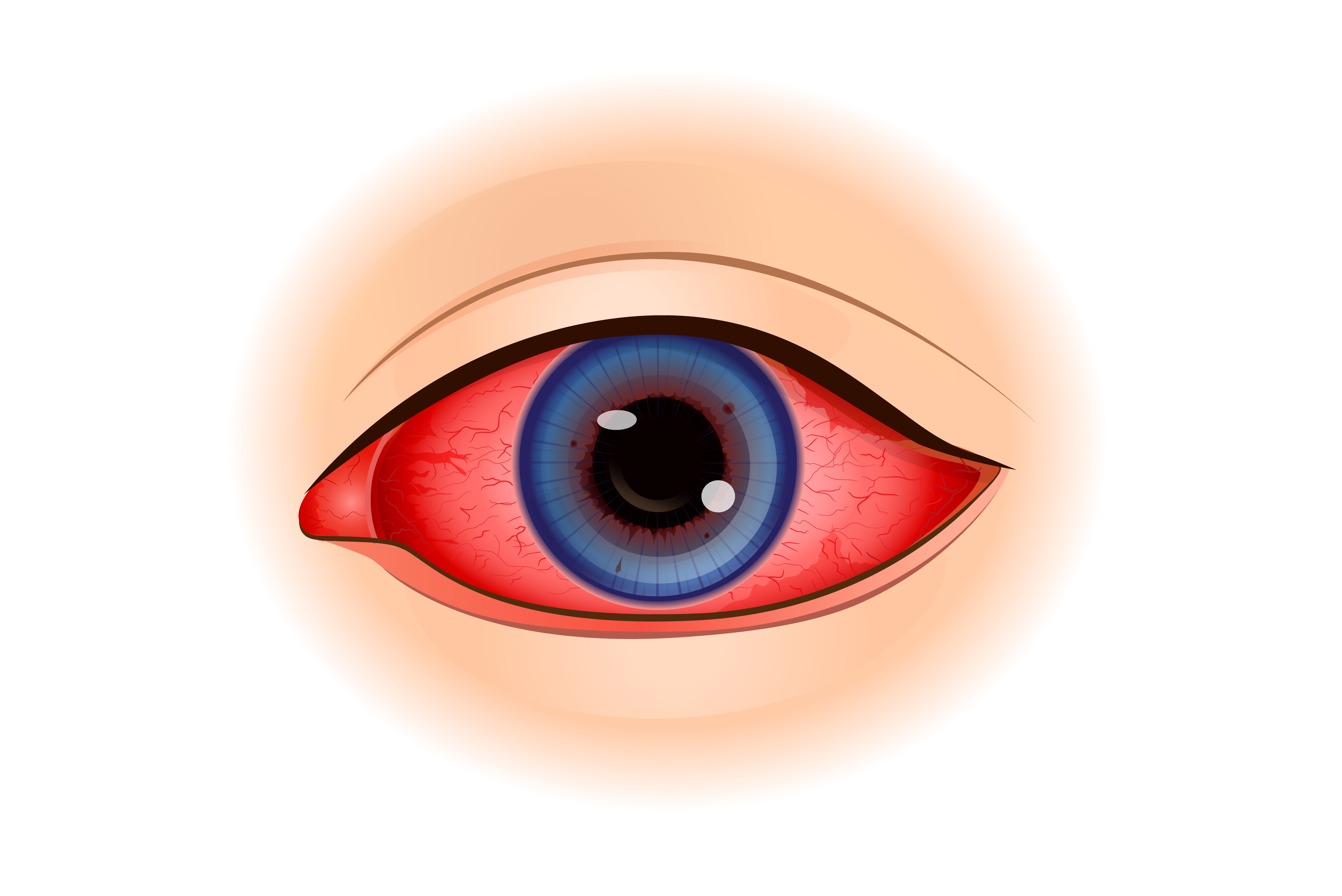 Uveitis is an inflammation