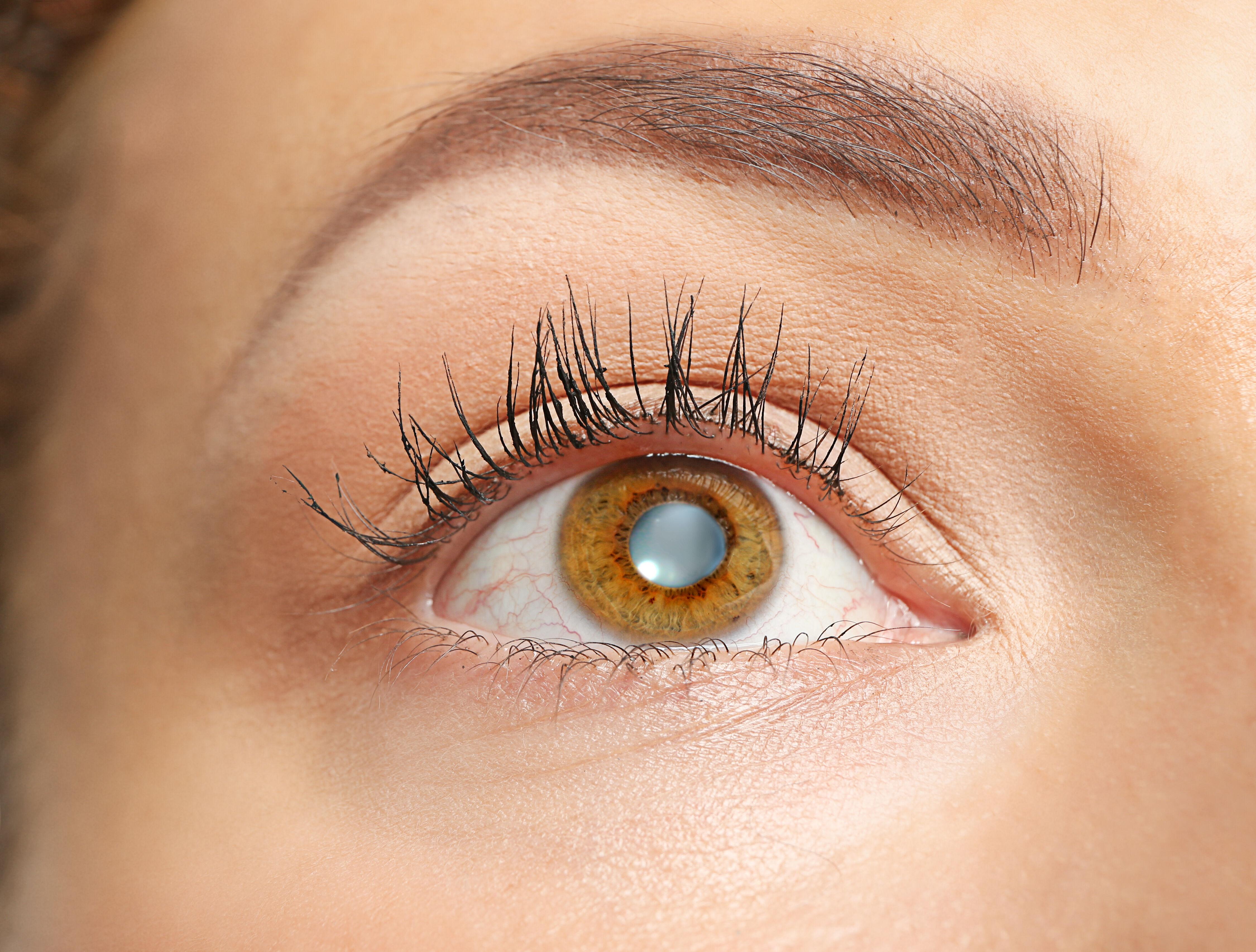 A cataract symptoms