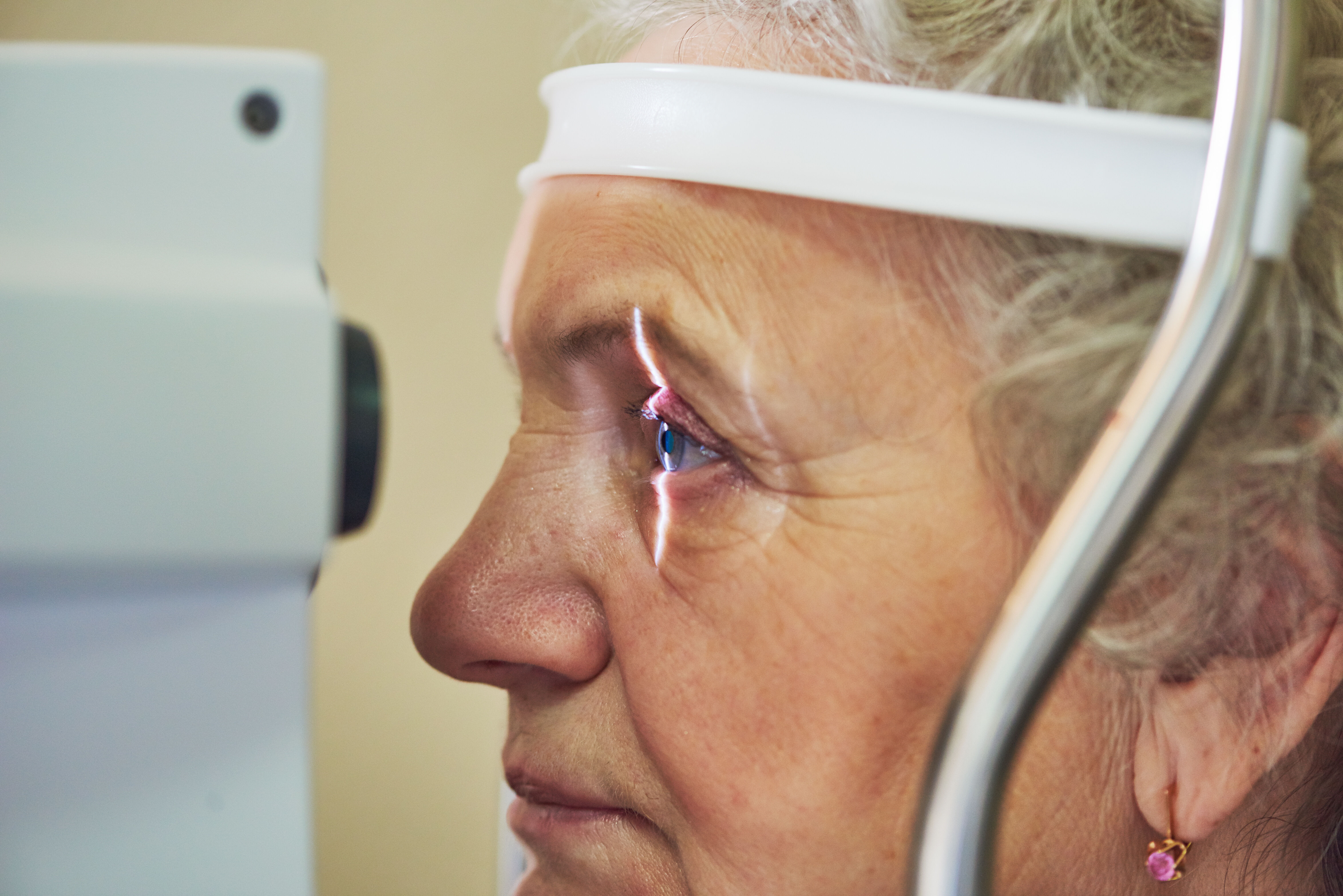Glaucoma is vision disease