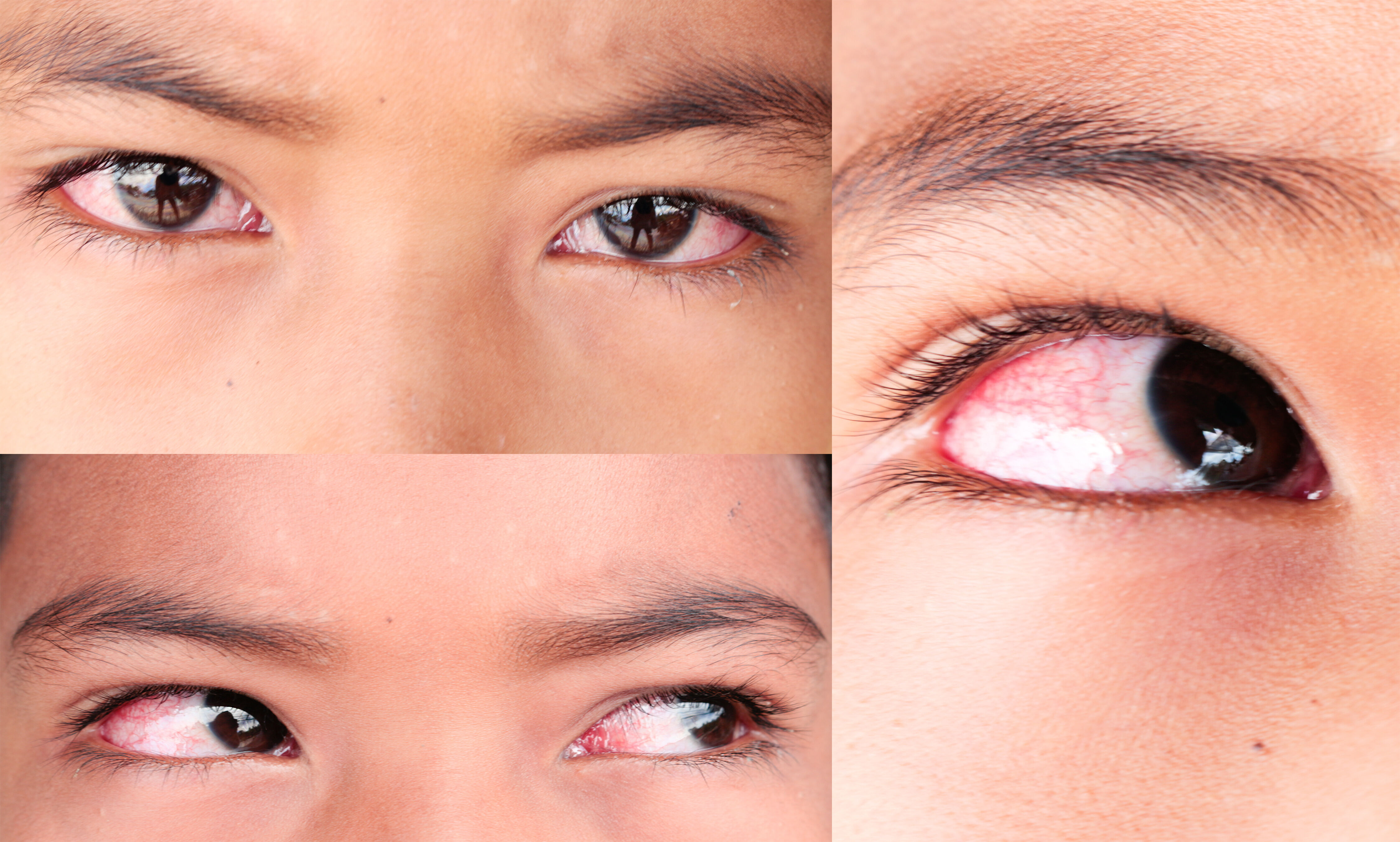 patients with ocular abnormalities