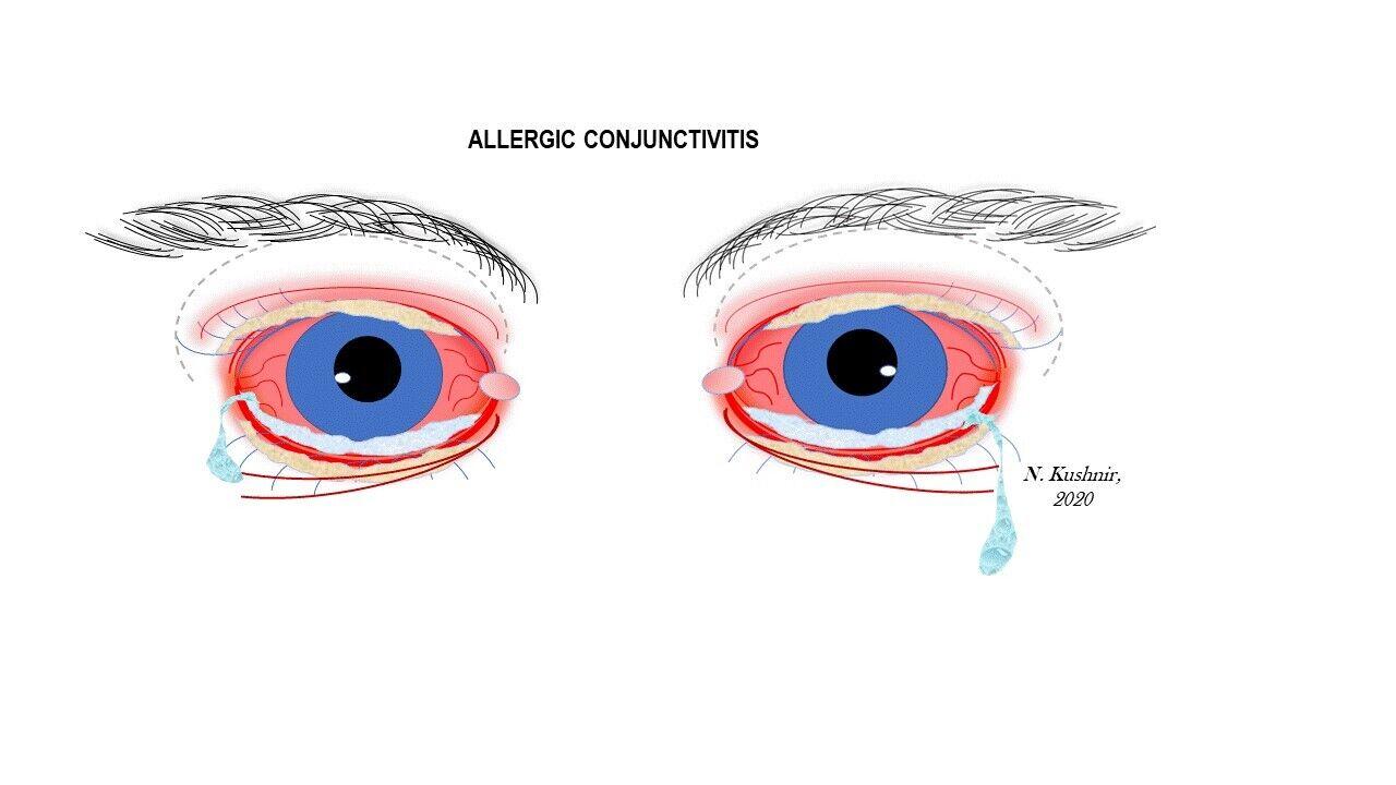 eye allergies are similar