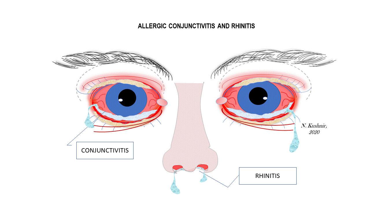 allergic conjunctivitis and rhinitis