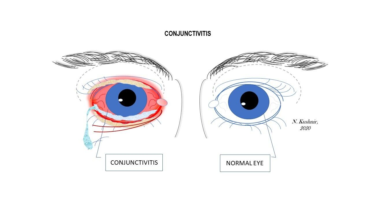 Conjunctivitis and normal eye
