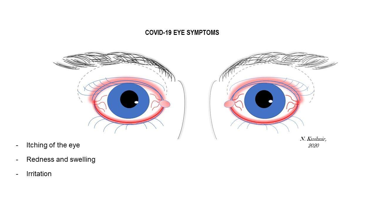 COVID eye symptoms